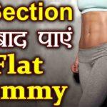 Weight Loss After Cesarean Delivery In Hindi | सिजेरियन डिलीवरी के बाद वजन कम होना हिंदी में
