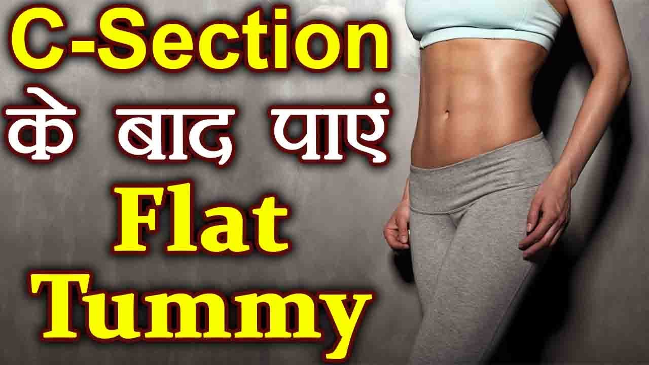 Weight Loss After Cesarean Delivery In Hindi